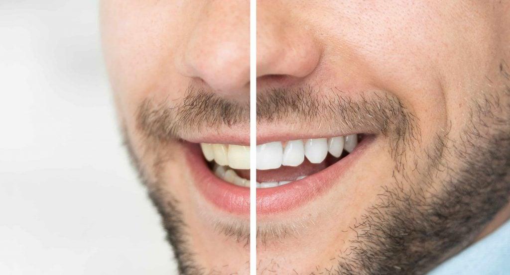 bleke tennene